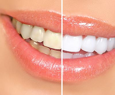 Dami Dent ordinacija, čiščenje in beljenje zob