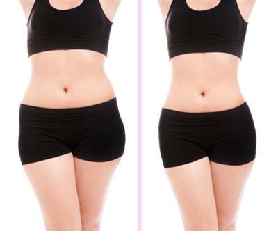 Paket preoblikovanje telesa s PERFECT BODY lipomasažo