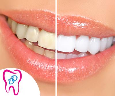 Cišcenje in beljenje zob