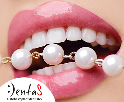 Dental studio Dentas