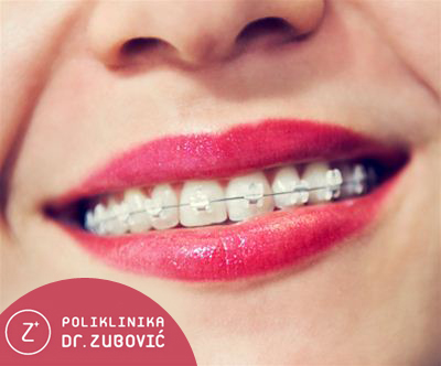 Vrednostni bon za fiksni zobni aparat