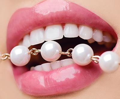 Cišcenje zobnega kamna in poliranje zob