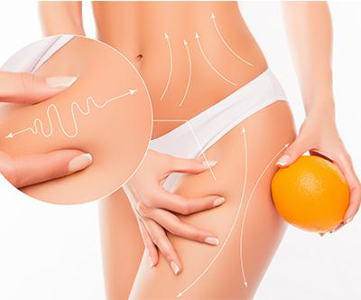 Nekirurška liposukcija
