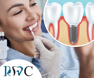 Ordinacija Rotim: vgradnja zobnega implantata