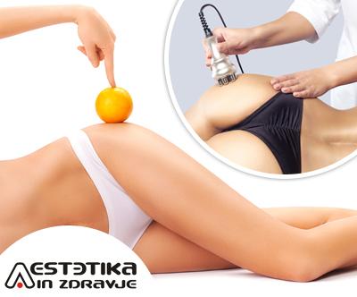 Aestetika: paket utrjevanja telesa (IR plošče)