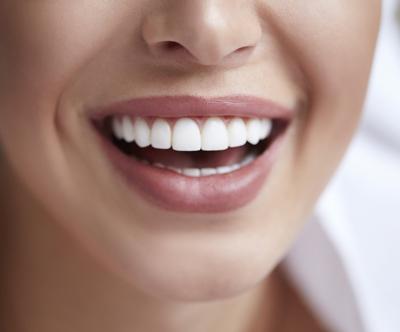 Marn medica: cišcenje zobnega kamna