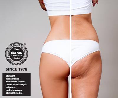 Lepotni center SPA Organic: preoblikovanje telesa